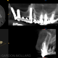 CBCT – coupe en site 21