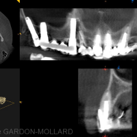 CBCT – coupe en site 23