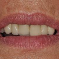 Visibilité des dents antérieures, lèvres au repos