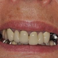 Visibilité des dents antérieures lors du sourire