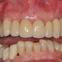 Restauration maxillaire d'usage