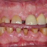 Patient parafonctionnel recherchant une solution implantaire pour compenser ses édentements maxillaire et mandibulaire gauches