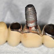 Le consentement éclairé en prothèse implantaire