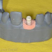 Implant maker de chez Dentsply Implant®