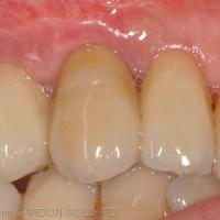 Fig. 2b, 2c, 2d, 2e: L'utilisation de piliers en zircone optimise le résultats esthétique, surtout dans les zones où la muqueuse péri-implantaire est fine et fragile.
