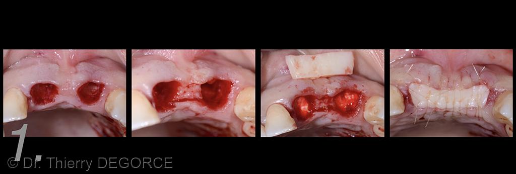 2. Extraction des dents 11 et 21 et fermeture des alvéoles.