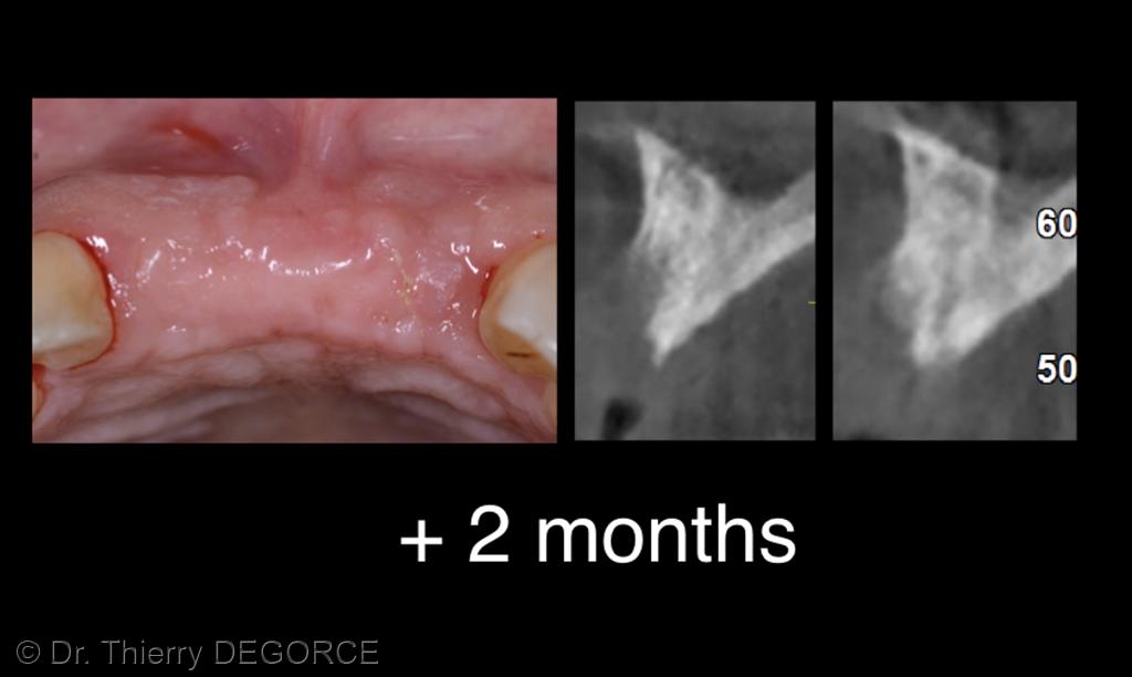 3. Situation clinique à deux mois. La patiente porte une prothèse amovible transitoire sans fausse gencive vestibulaire.