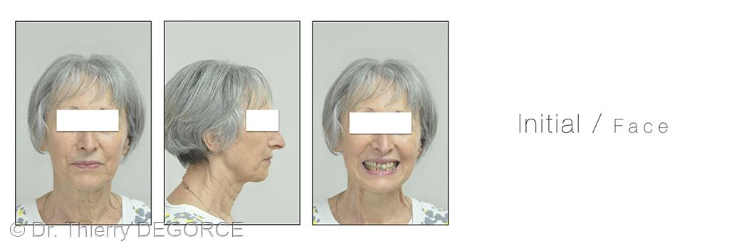 1. Analyse esthétique à l'échelle du visage.