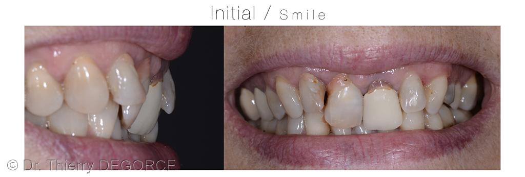 2. Analyse esthétique à l'échelle dento-labiale.