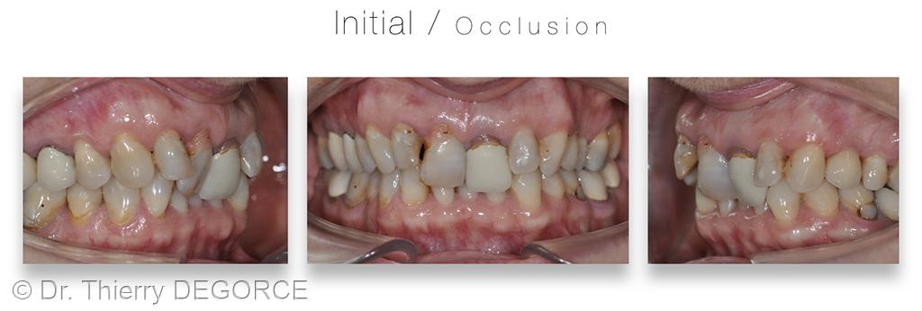 3. Analyse esthétique à l'échelle dento-gingivale.