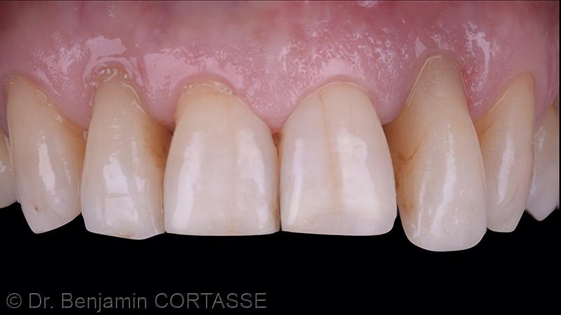 Nous pouvons constater une perte osseuse et une perte tissulaire correspondant à la classe 3 de la classification de Élian.