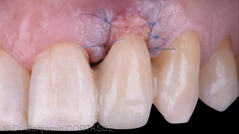 En vue vestibulaire, on peut apprécier la correction du volume et l'apport tissulaire nécessaire pour combler le défaut. La prothèse provisoire doit être non compressive.