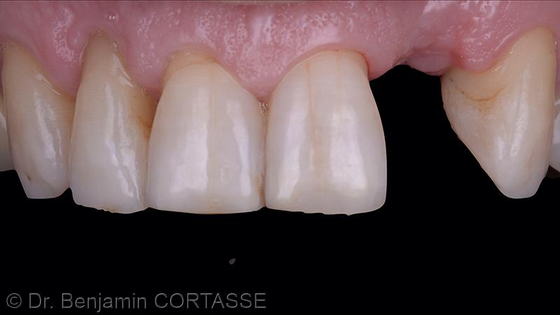 En vestibulaire, l'intégration du greffon, associée à la maintenance de la position des papilles nous permet d'envisager une approche mini-invasive pour positionner l'implant.
