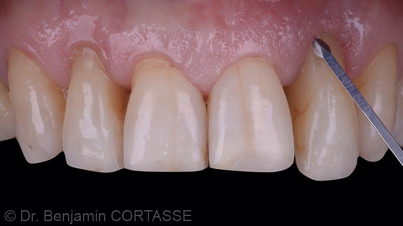 La décision thérapeutique a été d'extraire la dent puis de restaurer les volumes osseux et gingival avant la pose d'un implant dans de meilleures conditions. Cette extraction - la plus atraumatique possible - est donc réalisée. Elle débute par une incision intrasulculaire à l'aide d'une micro-lame de chirurgie (Viperblade - MJK instruments).