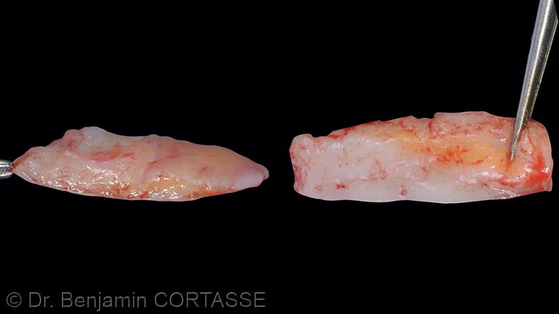 Le conjonctif prélevé a une dimension d'environ 20mm x 7mm. On reconnaît le prélèvement typique de cette zone avec présence de cellules adipeuses et d'un réseau vasculaire.