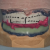 Le positionnement des dents en prothèse complète implanto-portée