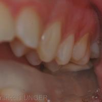 La fermeture sur la butée met en évidence l'inocclusion totale des autres dents.