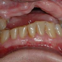 OIM de la patiente si la prothèse est déposée. Noter que le contact intercanin à droite porte seul la position mandibulaire