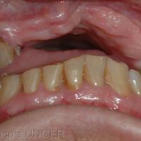 Position mandibulaire obtenue par manipulation douce. Le seul contact est sur l'amalgame mésial de 25, sans possibilité de calage.