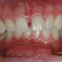 Occlusion obtenue par manipulation douce de la mandibule. observer que le surplomb canin gauche a disparu mais qu'il existe un décalage des points interincisifs.