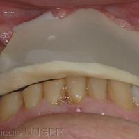 l'orthèse est réglée de façon à établir un appui sur toutes les cuspides supports des dents mandibulaires et en particulier les pointe canines.