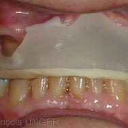 La situation spatiale de la mandibule avec l'orthèse est grossièrement comparable à celle obtenue par manipulation pour l'ORC détendue