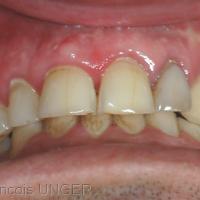 OIM antérieure avec des contacts entre toutes les dents