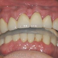 Orthèse de stabilisation en ORC en bouche