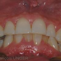 l'OIM établit des contacts entre toutes les dents antérieures