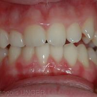 OIM vue de face. les dents antérieures et celles du coté droit établissent seules des contacts occlusaux