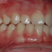 OIM Contacts du coté droit. les dents antérieures sont en contact