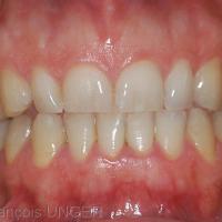 Première OIM donnée par la patiente si on lui demande de serrer les dents. noter le défaut de calage intercanin à gauche