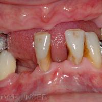"""La prothèse amovible étant déposée on observe un calage instable entre 14 et 44 d'une part et entre 25 et 36 d'autre part. La mandibule """"navigue"""" entre les différentes positions possibles."""