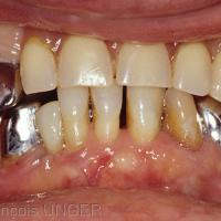 Prothèse amovible procurant un calage fragile entre 23 et 33 et un contact instable entre 13 et 43