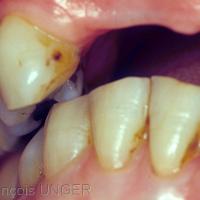 Si le patient cherche à caler la mandibule sur le coté gauche il perd le contact intercanin à droite
