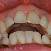 Surplomb obtenu après détente mandibulaire du jour. On considére cette situation comme l'ORC approchée du jour