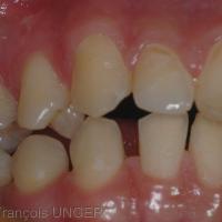 Prématurité entre 14 et 43 apparaissant lors du recul mandibulaire lié à la position d'ORC approchée