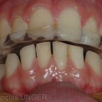 Orthèse en place et mandibule en ORC vue de face en contre plongée. On retrouve le surplomb apparu dans cette position mandibulaire sans l'orthèse