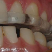 Absence de calage de 33. Défaut de calage bilatéral mandibulaire en ORC