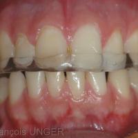Orthèse en place vue de face (patient en OIM)