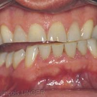 Fig 2 : Cas 1 - Le patient nous explique qu'il peut fermer sa bouche dans plusieurs positions et qu'il peut y établir des contacts maximaux et serrer très fortement. Ici il établit un calage antéro-canin à gauche et un calage bilatéral distal simultané sur lequel il peut effectivement serrer très fortement