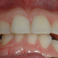Fig 11 : Cas 4 -En fait, la mandibule oscille entre différentes positions de calage maximal: soit avec appui à droite (et calage moindre à gauche)...