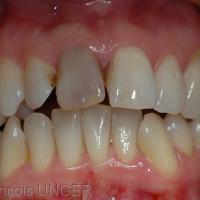 Fig 14 : Cas 5 - Une autre position mandibulaire permettant d'établir des contacts maximaux pour un serrage maximal