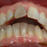 Fig 15 : Cas 5 - Autre option pour ce patient: caler bilatéralement sa mandibule sur les dents cuspidées et laisser un grand surplomb antérieur. Il existe donc au moins 3 OIM pour ce patient.