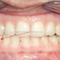 Fig 3- Position latérale en bout à bout à droite et AFMP correspondant