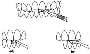 Fig 1 : Tracé des AFMP. Schéma tiré du livre de Planas, Réhabilitation neuro-occlusale.