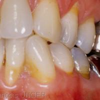 Fig 2 : Dès le début du mouvement de latérotrusion il y a une disparition totale des guidages par 26 et 36 alors que toutes les autres dents semblent conserver des contacts antagonistes glissants