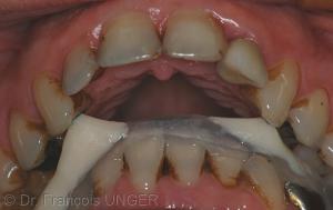 4 : Orthèse mandibulaire nécessitant des volumes canins importants pour compenser le surplomb.