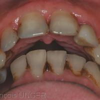 2 : Même situation mais spatialement différente: la mandibule navique sans pouvoir se caler. Le contact molaire unique sur le moignon de 48 est le seul qui peut aboutir à stabiliser la mandibule avec appui sur 23