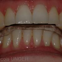Nouvelle gouttière (mandibulaire) en OIM. noter que l'usure n'a pas encore permis d'établir des contacts simultannés sur toutes les dents.